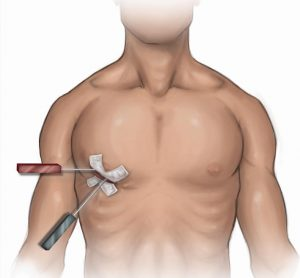 The Benefits of Minimally Invasive Surgery